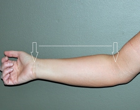 how to measure your forearm selecting smart crutches